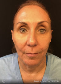 Nonsurgical Lift